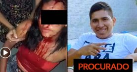 Mulher agredida em Capanema